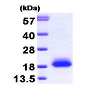 AR09267PU-L - Visinin-like protein 1 / HLP3