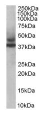 AP16117PU-N - TRIM54 / MURF3 / RNF30