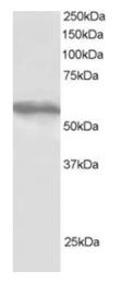 AP16124PU-N - TRIM4 / RNF87