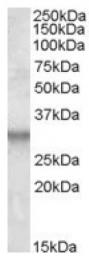 AP16901PU-N - ITM2B