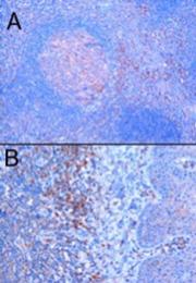 AP16125PU-N - TRIM5 / RNF88