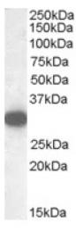 AP16914PU-N - Monoglyceride lipase