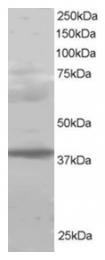 AP16133PU-N - RNF110 / PCGF2