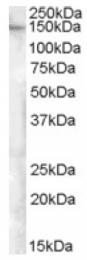 AP16917PU-N - ESYT1