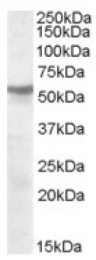AP16769PU-N - Acetylcholine receptor beta subunit