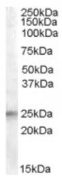 AP16770PU-N - IGFBP6