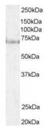 AP16136PU-N - Pescadillo homolog (PES1)