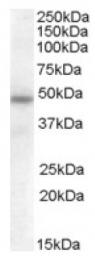 AP16773PU-N - SERPINA12