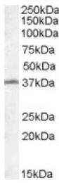 AP16775PU-N - RSPH1 / TSGA2