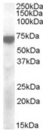 AP16780PU-N - KCNQ4