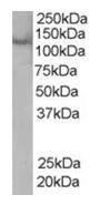 AP16153PU-N - Rabenosyn-5 / ZFYVE20