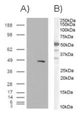 AP16154PU-N - SMARCE1 / BAF57