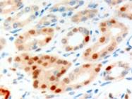 AP16165PU-N - Anillin / ANLN