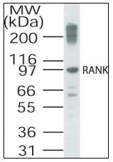 AP08474PU-N - CD265 / RANK