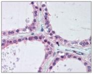 AP08483PU-N - UBE2V1 / CROC1