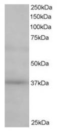 AP16168PU-N - Renin receptor