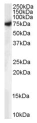 AP16175PU-N - STXBP1 / UNC18A