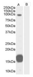 AP16176PU-N - ARHGAP26 / OPHN1L
