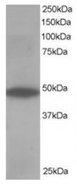 AP16180PU-N - OSBPL1A
