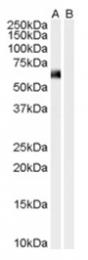 AP16184PU-N - Syntrophin-1 / SNTA1