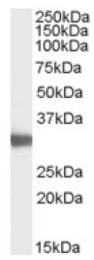 AP16794PU-N - LDHC