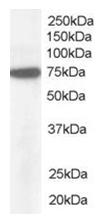 AP16187PU-N - NUP85 / NUP75 / PCNT1