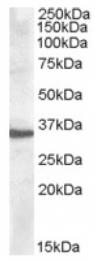 AP16808PU-N - Apolipoprotein F / Apo F