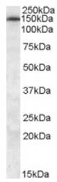 AP16812PU-N - ABCC5 / MRP5