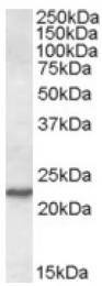 AP16826PU-N - SAR1A