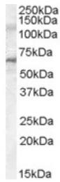AP16830PU-N - IRAK3
