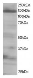 AP16195PU-N - EIF4ENIF1 / 4E-T