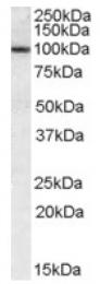 AP16834PU-N - CLCA1