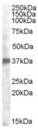 AP16835PU-N - TACSTD2