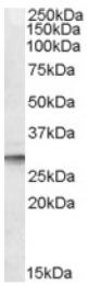 AP16837PU-N - DPM1
