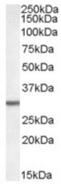 AP16838PU-N - DPM1