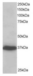 AP16202PU-N - PDLIM4