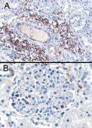 AP16209PU-N - SH3BP1