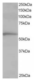 AP16211PU-N - CCT1 / TCP1