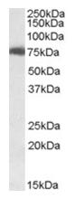 AP16213PU-N - USH1C  / Harmonin