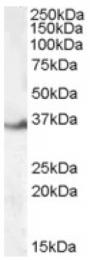 AP16698PU-N - LASP1