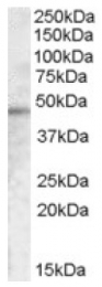 AP16704PU-N - TMPRSS3