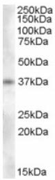 AP16705PU-N - Proenkephalin-A (PENK)