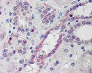 AP16216PU-N - NOXO1