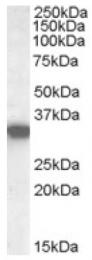 AP16706PU-N - HADH / HCDH