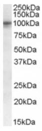 AP16708PU-N - TAS1R2 / GPR71