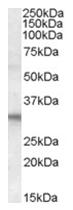 AP16218PU-N - FHL2 / SLIM3