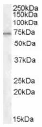 AP16714PU-N - MEPCE / BCDIN3