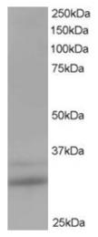 AP16224PU-N - HTATIP2