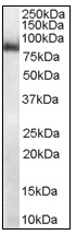 AP08553PU-N - MID2 / RNF60