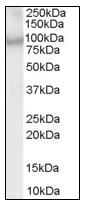 AP08558PU-N - ACAP2 / CENTB2